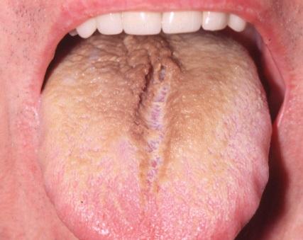 Hairy Tongue